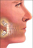 services-wisdom-teeth