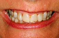 Procelain Veneers Before | Dr. Faith Bult | Bellingham, WA