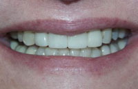 Porcelain Veneers to Correct Discoloration (after) | Dr. Faith Bult | Bellingham, WA