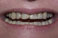 Porcelain Veneers to Correct Discoloration (before) | Dr. Faith Bult | Bellingham, WA