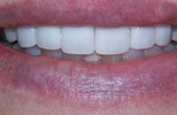 Composite Veneers Changed to Porcelain Veneers (after) | Dr. Faith Bult | Bellingham, WA
