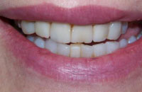 Composite Veneers Changed to Porcelain Veneers (before) | Dr. Faith Bult | Bellingham, WA