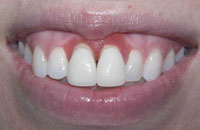 Gum Recontouring (before) | Dr. Faith Bult | Bellingham, WA
